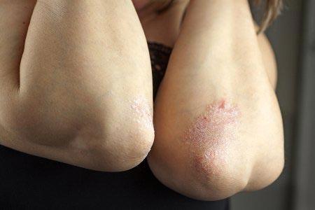 psoriasis on elbows
